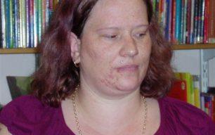 Oral history audio recording of Emma Anderson.